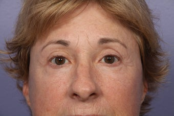Eyelid Surgery after 306434