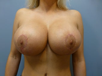 Breast Implant Exchange and Lift- Saline to Silicone