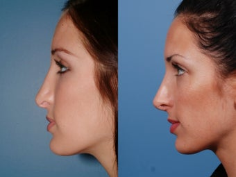 Revision rhinoplasty after 435947