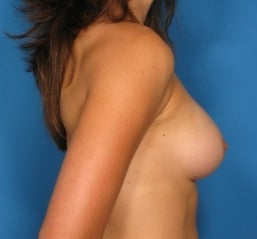 Breast augmentation,  463744
