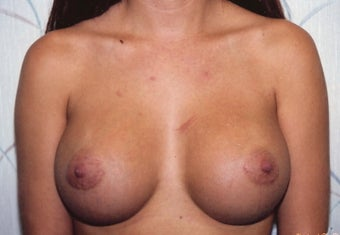 Breast Augmentation after 266791