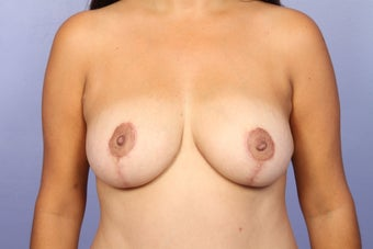 Breast Augmentation after 467211