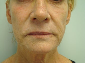 Facelift In A Syringe before 577237