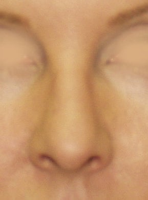 Revision Rhinoplasty after 410624