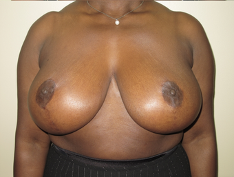 Breast Reduction after 410405