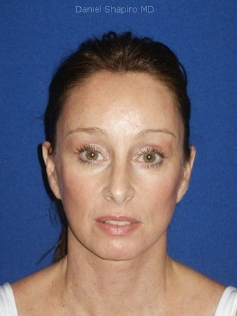 Facelift, Endoscopic Browlift, Upper and Lower Blepharoplasty after 248888