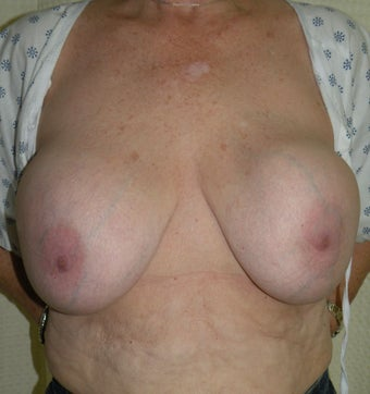 Breast Implant Removal With Capsulectomy before 335527
