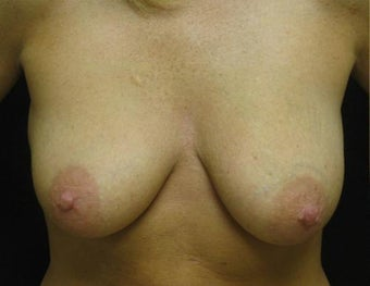 Breast Lift with Augmentation before 555389