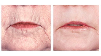 Laser skin resurfacing around the mouth before 6594