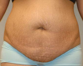 Abdominoplasty before 274541