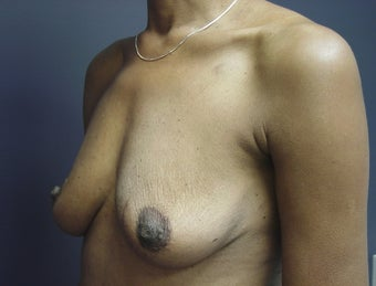 Breast Augmentation  465538