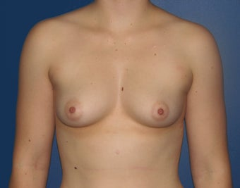 Breast Augmentation before 578454