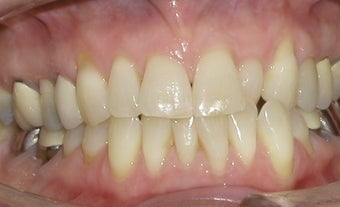 Invisalign correction of crowding before 273977
