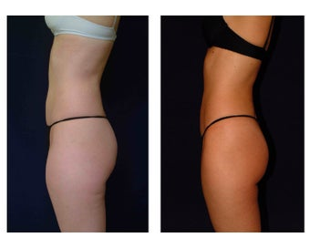 Liposuction before 286689