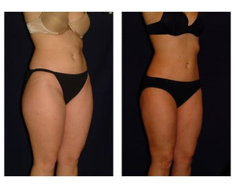 Liposuction before 286642