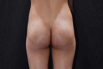 Buttock Augmentation with Gluteal Implant after 411237