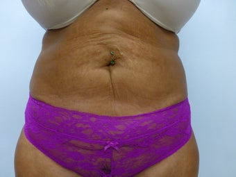 Exilis for skin tightening on post liposuction patient