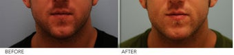 Male Lower Face Enhancement before 339200