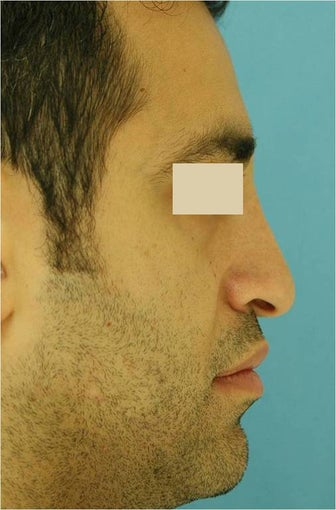Rhinoplasty, Septoplasty before 125624