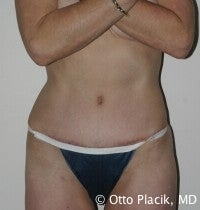 Abdominoplasty after 566471