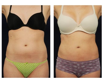 Liposuction before 396995