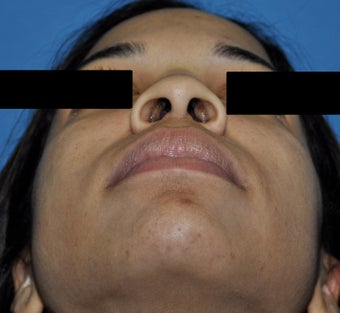 African American Rhinoplasty before 364921