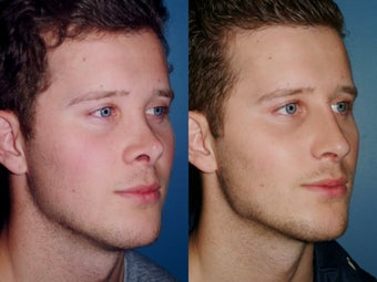 Revision rhinoplasty 334244