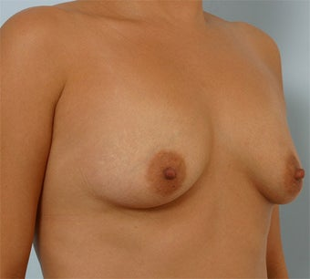 Breast Augmentation before 260941