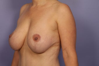 Breast Lift after 311076