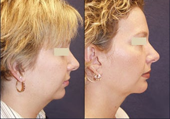 Chin Augmentation before 97279