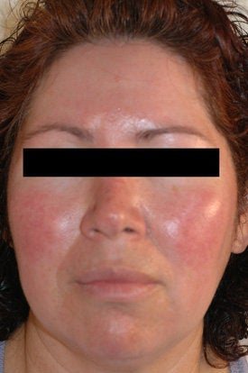Laser Treatments for Rosacea before 106561