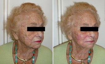 Facial Filler before 185800