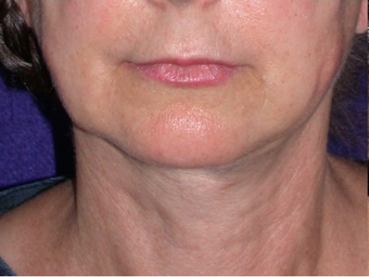 Necklift after 208445