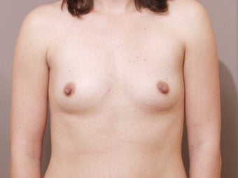 Silicone Breast Augmentation/ Breast Implants before 514906