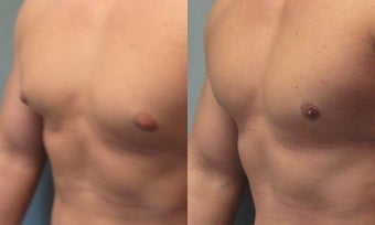 Gynecomastia before 350474