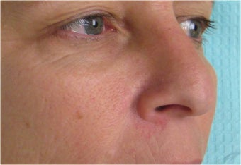 Radiesse for nose re-shaping before 77454