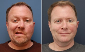 Facial Paralysis and Reconstruction before 346221
