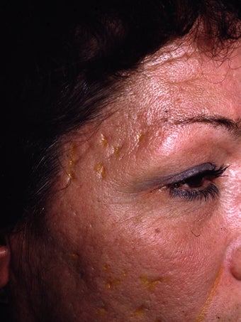 Acne Scarring before 417395