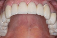 Dental Implants after 510573