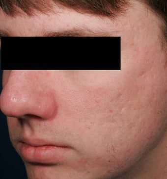 Fraxel -acne scars after 136197