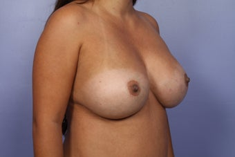 Breast Implant Revision after 622841