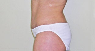 Abdominoplasty  491366
