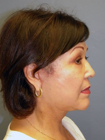 Neck Lift, Platysmaplasty 634728