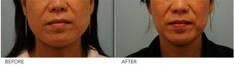 Botox Jaw (masseter) reduction before 396047