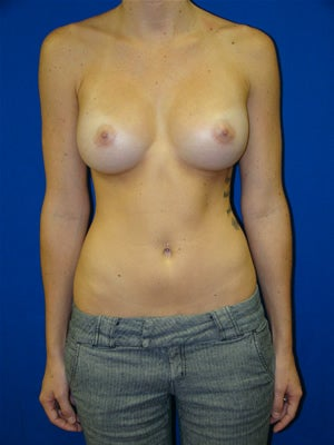 Breast Augmentation Surgery after 135303