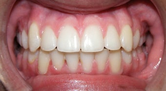 Teen Orthodontic Treatment (case #1BG) after 224559