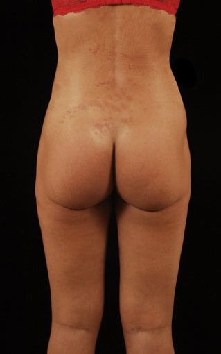 Liposuction 512878