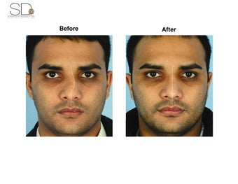 Revision Rhinoplasty  before 100947