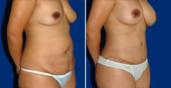 Tummy Tuck after 495846