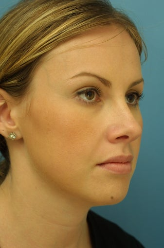 Rhinoplasty after 203548